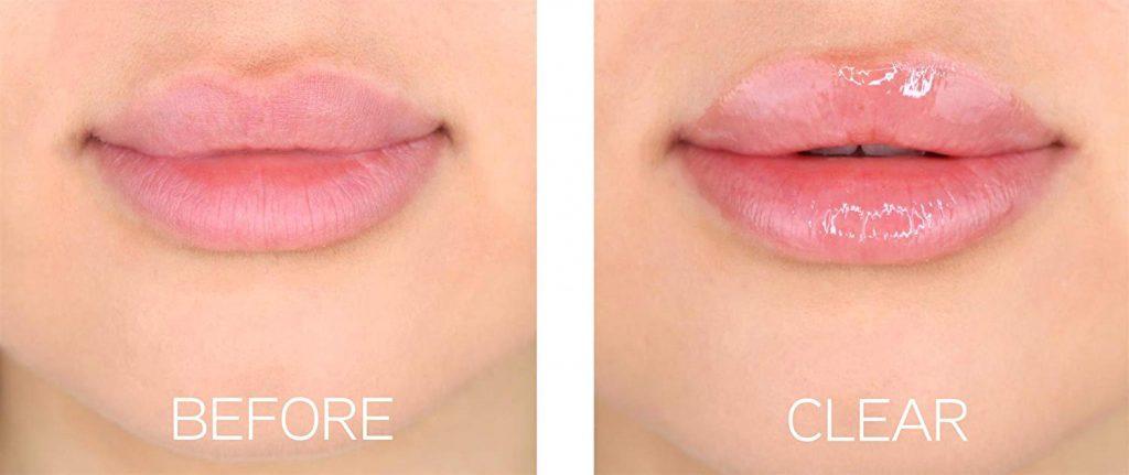 volumizzante labbra carnose acido ialuronico