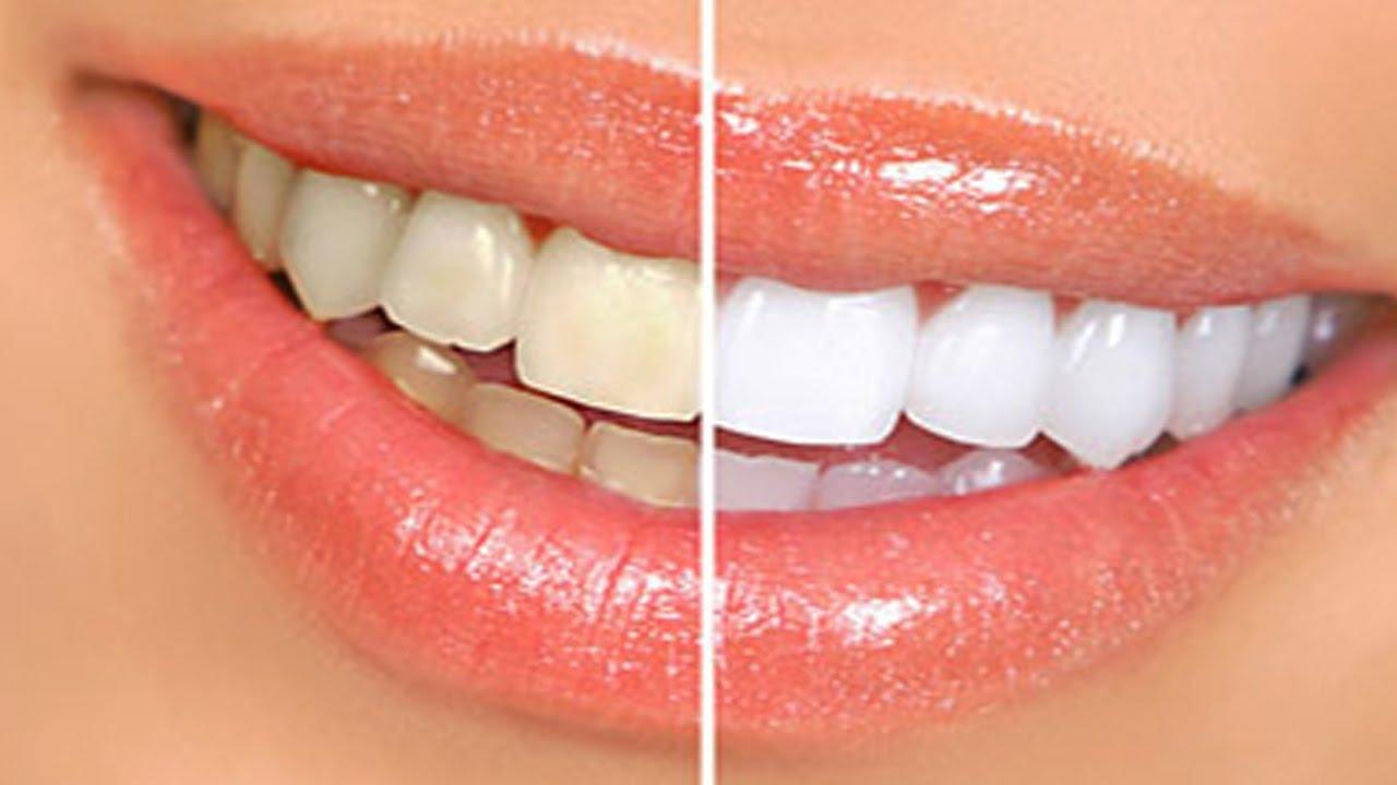 Sbiancamento denti fai da te